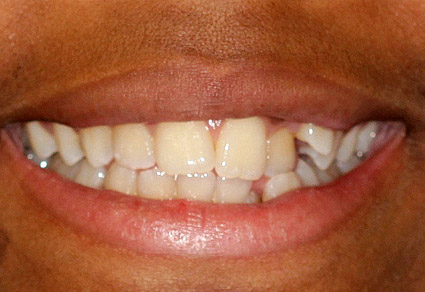cedar grove dental before
