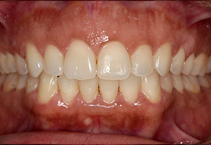 cedar grove dental results