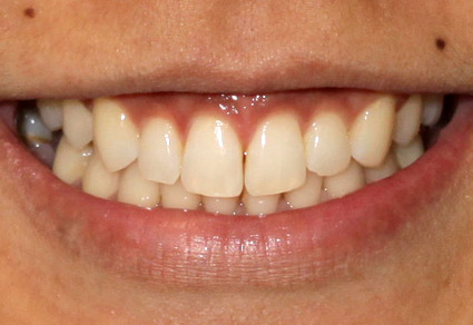 cedar grove dental after results